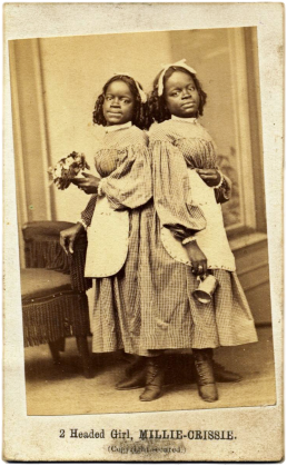 Millie_and_Christine_McKoy_by_Fitzgibbon,_1867
